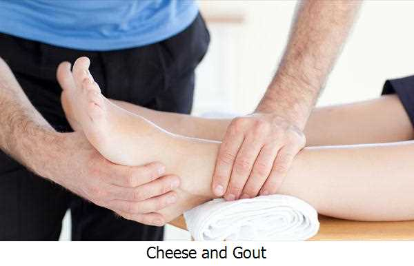 Cheese and Gout