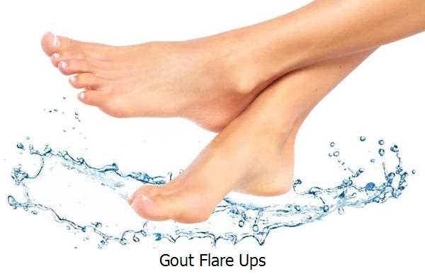 Gout Flare Ups