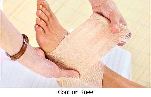 Gout on Knee