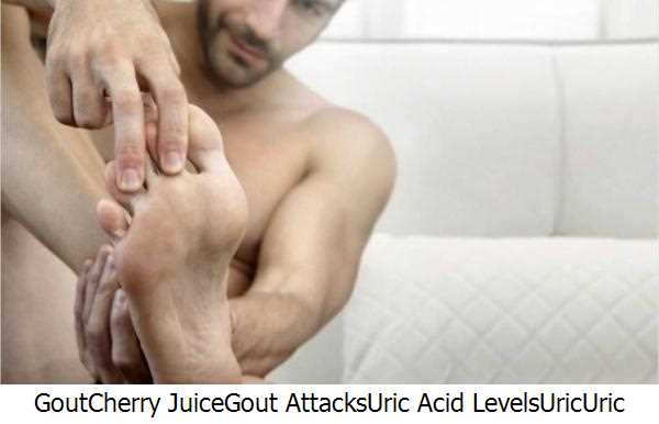 Gout,Cherry Juice,Gout Attacks,Uric Acid Levels,Uric,Uric Acid,Severe Gout