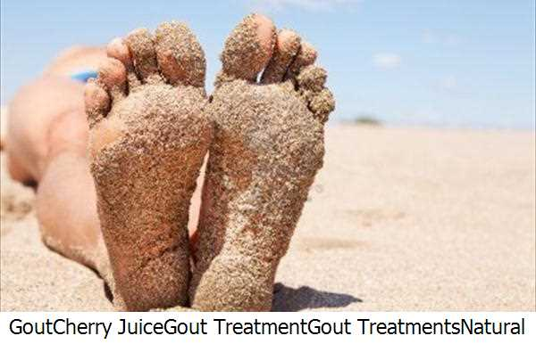 Gout,Cherry Juice,Gout Treatment,Gout Treatments,Natural Gout Cures,Natural Gout,Gout Cures,Gout Patients