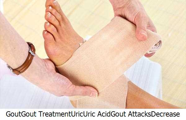 Gout,Gout Treatment,Uric,Uric Acid,Gout Attacks,Decrease Uric Acid,Natural Gout Treatment,Natural Gout,Gout Prevention