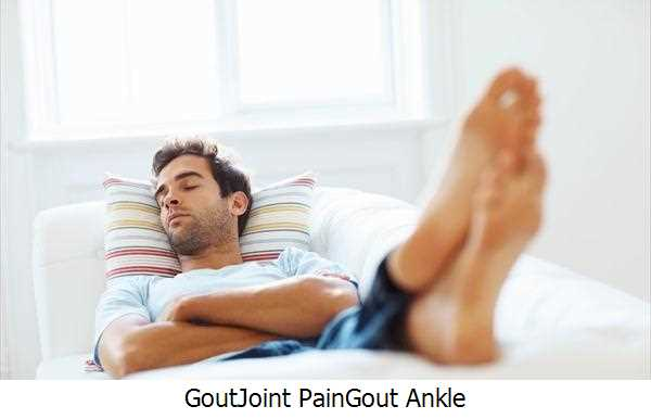 Gout,Joint Pain,Gout Ankle