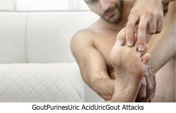 Gout,Purines,Uric Acid,Uric,Gout Attacks