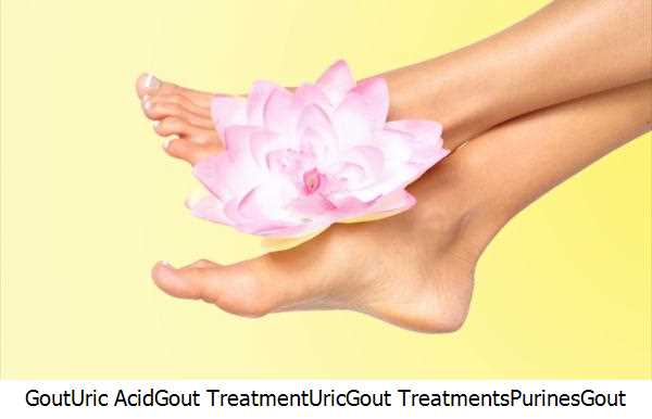 Gout,Uric Acid,Gout Treatment,Uric,Gout Treatments,Purines,Gout Coffee,Uric Acid Level,Gout Patients