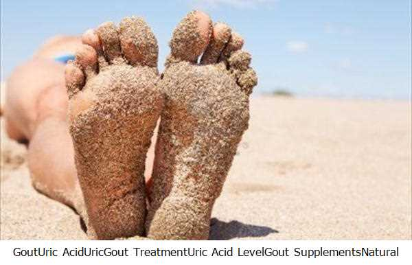 Gout,Uric Acid,Uric,Gout Treatment,Uric Acid Level,Gout Supplements,Natural Gout,Gout Gout,Gout Attacks