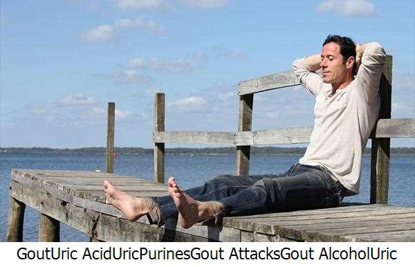 Gout,Uric Acid,Uric,Purines,Gout Attacks,Gout Alcohol,Uric Acid Levels,Alcohol Gout,Gout Gout