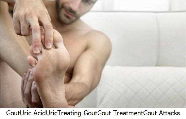 Gout,Uric Acid,Uric,Treating Gout,Gout Treatment,Gout Attacks