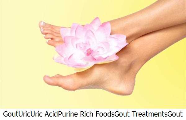 Gout,Uric,Uric Acid,Purine Rich Foods,Gout Treatments,Gout Gout,Gout Toe,Gout Symptoms