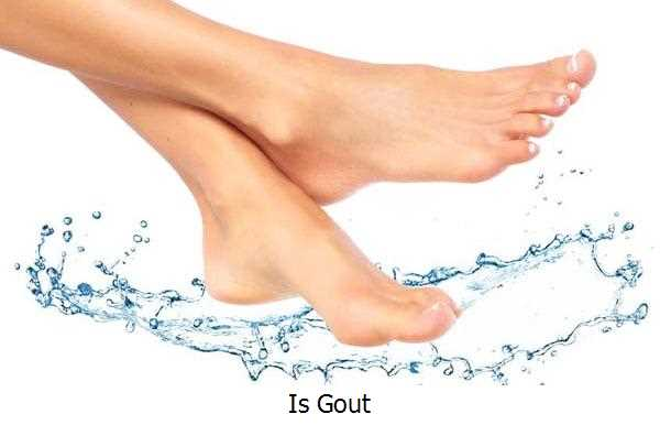 Is Gout