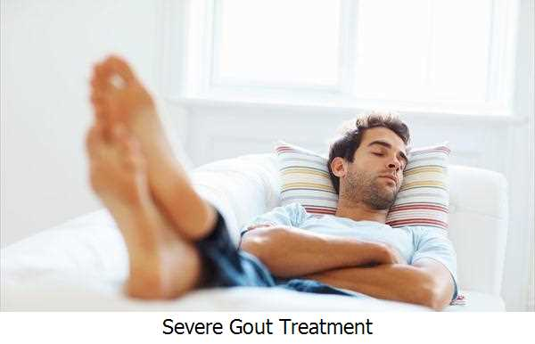Severe Gout Treatment
