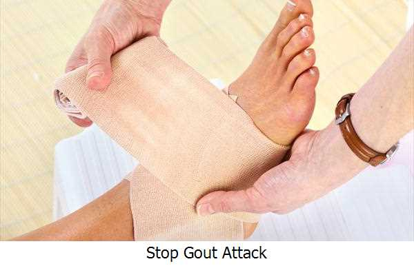 Stop Gout Attack